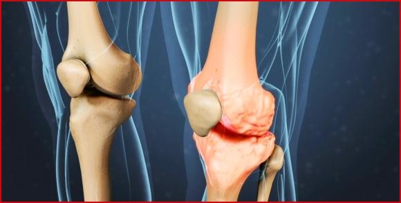 Лечения при болях связок колена